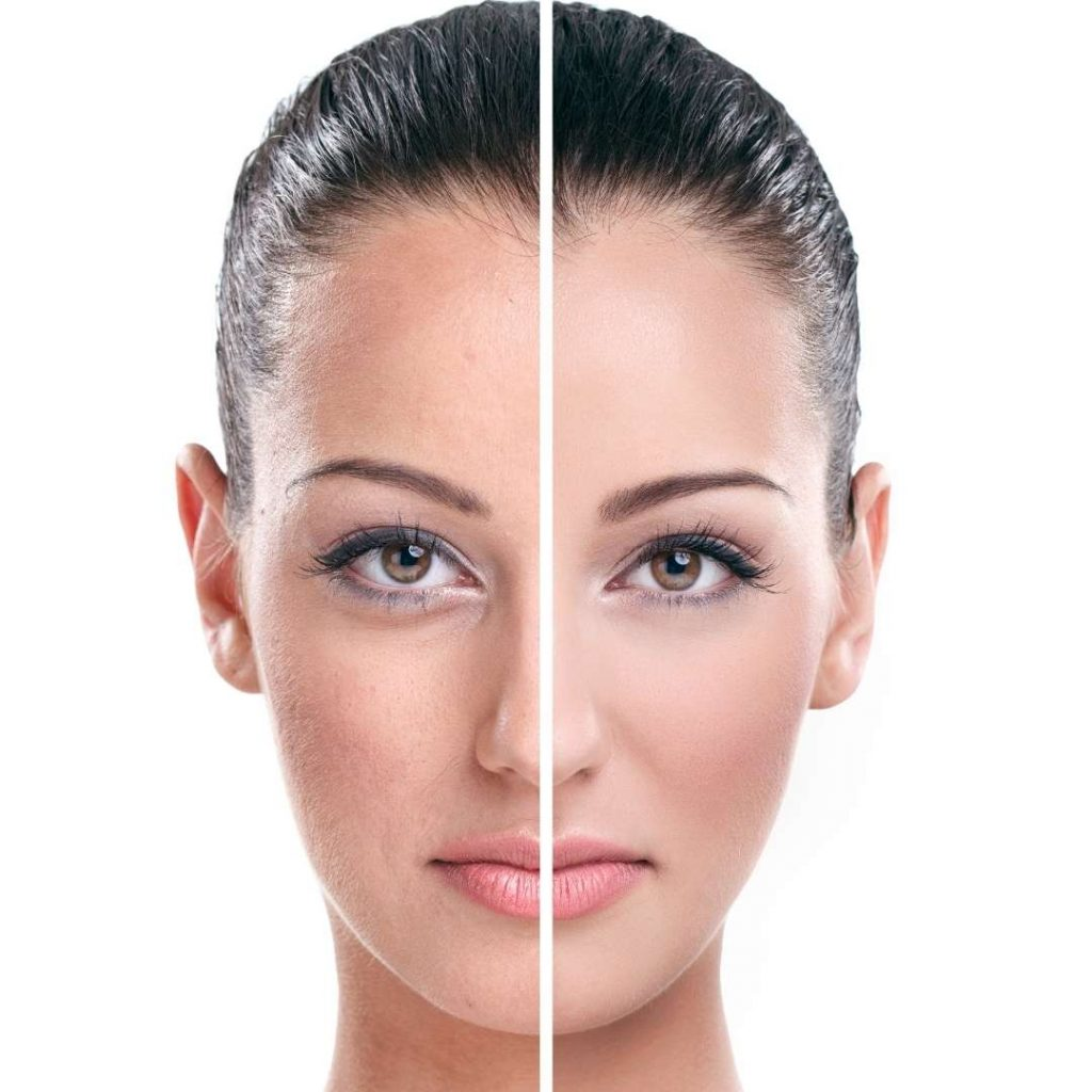 Skin Peel Benefits - Dr. Kaveh Karandish - Dr. K MedSpa - PCH MedSpa - Corona Del Mar, California
